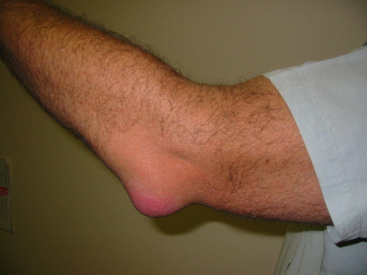 könyök bursitis kezelési rend ízületi fájdalom a szteroidok miatt