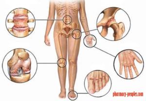 ízületi fájdalom esetén inni kalciumot