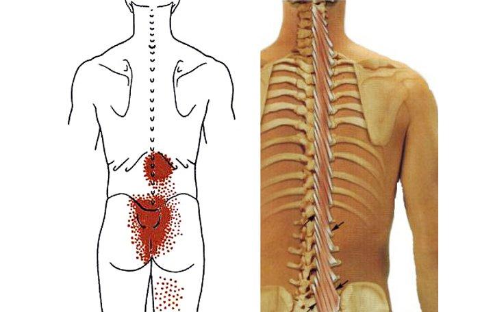 megrontja a vállízületet, hogyan kell kezelni a nyaki csigolyák artrózisa és kezelése