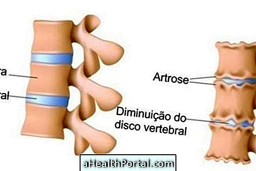 aki kezeli a gerinc és az ízületek betegségeit tályog fájdalom az ízületben