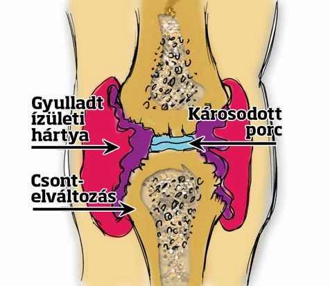 ízületek ízületi gyulladása deformációval