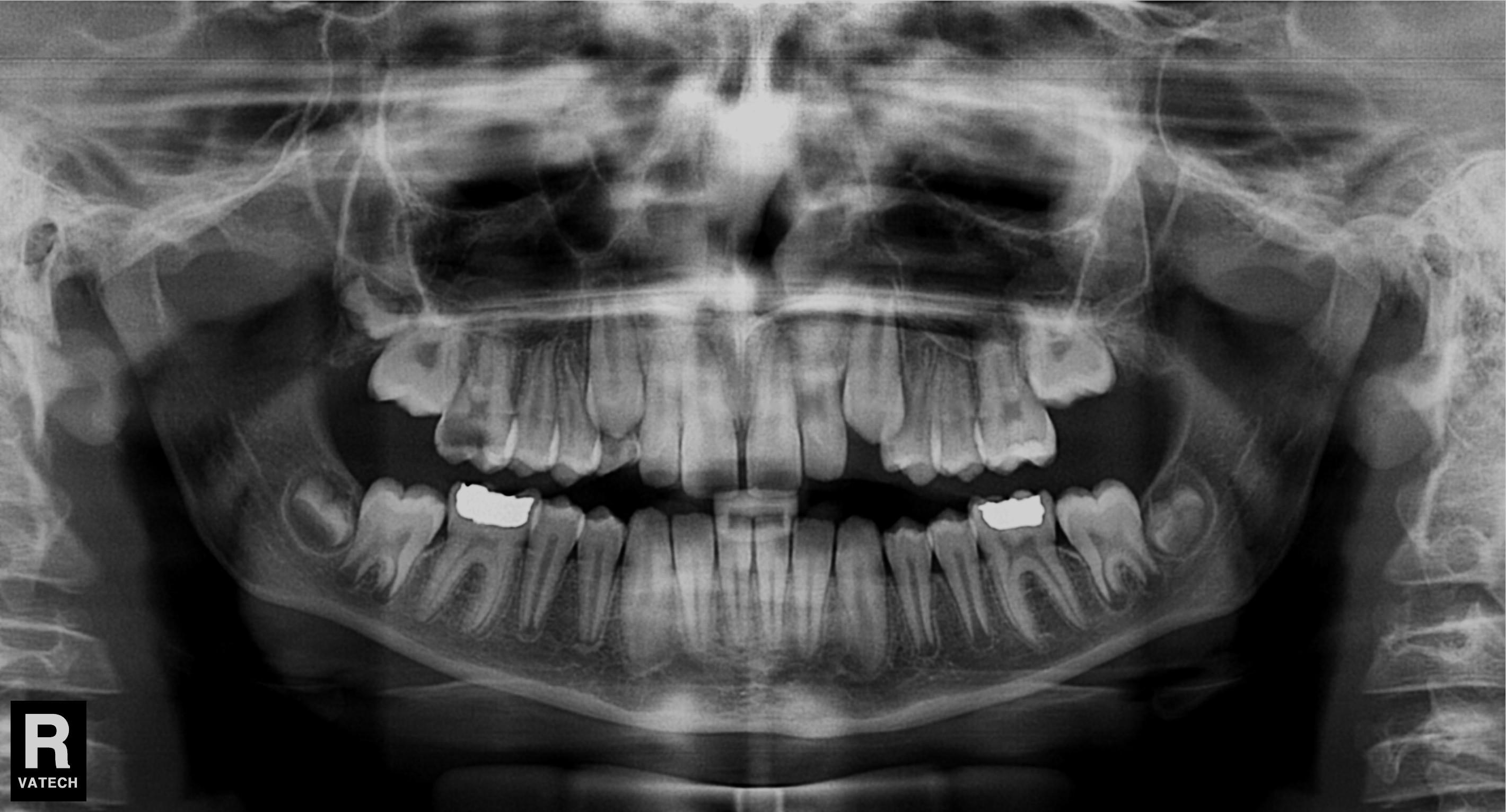 bölcsesség fogak és ízületi fájdalmak táplálkozás és kezelés artrózis és csontritkulás esetén