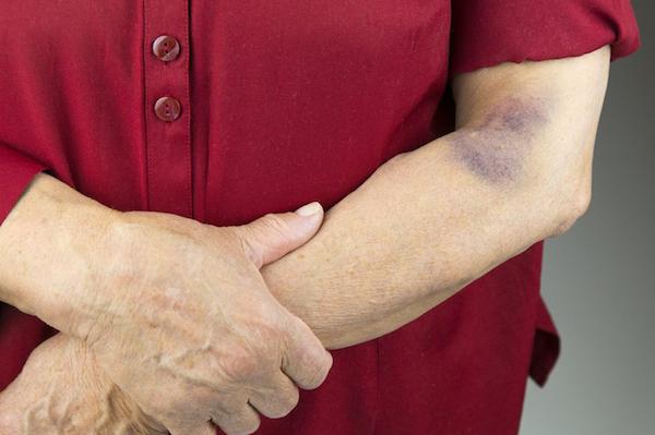 arthritis arthrosis kenőcskezelés csípőízületek fájdalma az alsó hátfájás miatt
