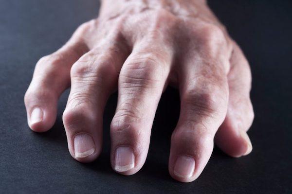 1. eljárás a térd deformáló artrózisának kezelésére izomfájdalom izomgyengeség