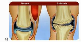 térd osteoarthrosis kezelése 2 fokos kezelés