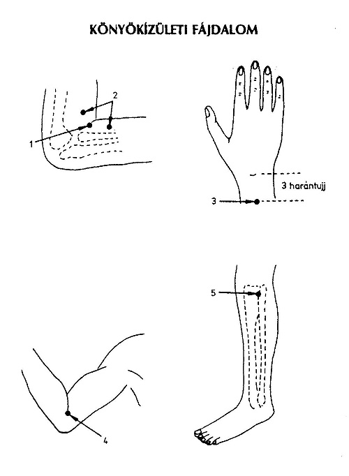 fájdalom a könyökízület hajlításánál fájdalomcsillapító gyógyszerek a vállízület artrózisához