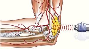 A porckopás és a kezdődő artrózis első tünetei