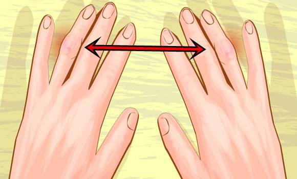 térd artrózis