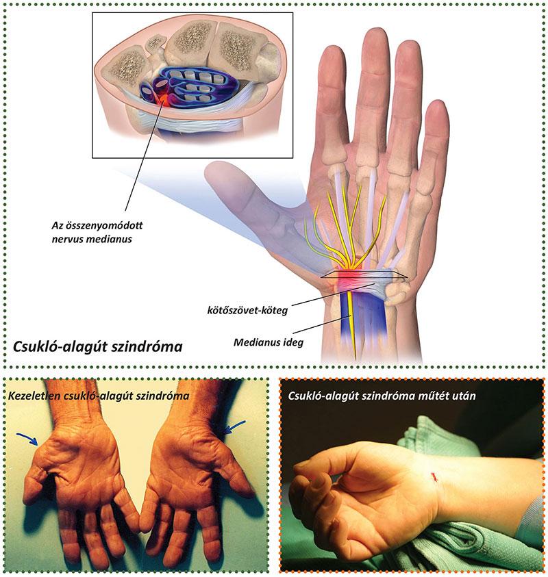 fájó könyökízületek kezelése arthro guard gyakori kérdések