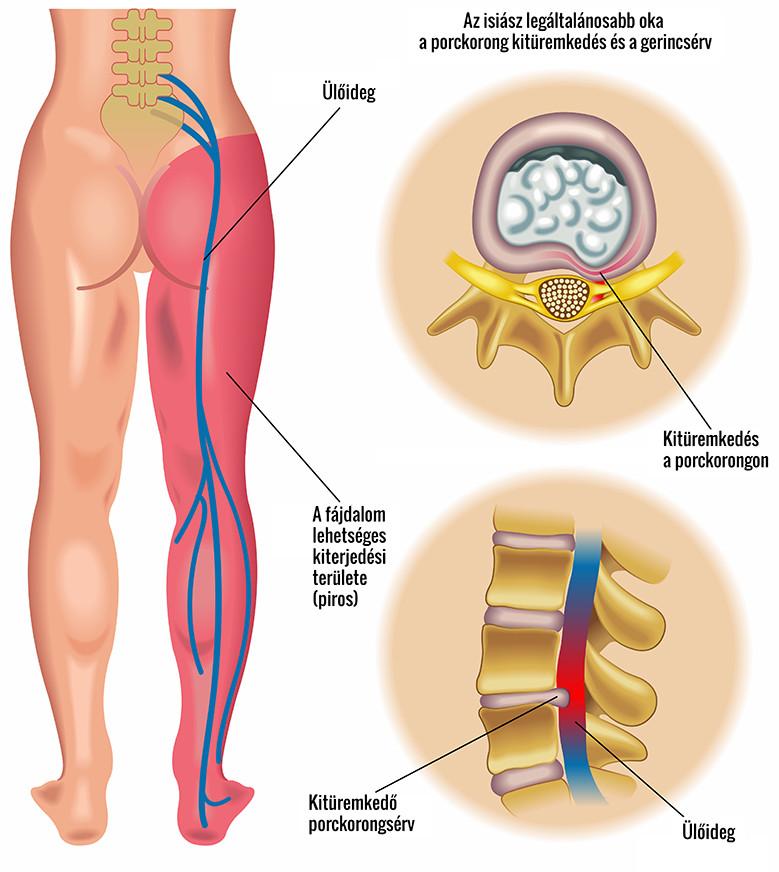 miért fájnak a csípőízületek nyújtás után