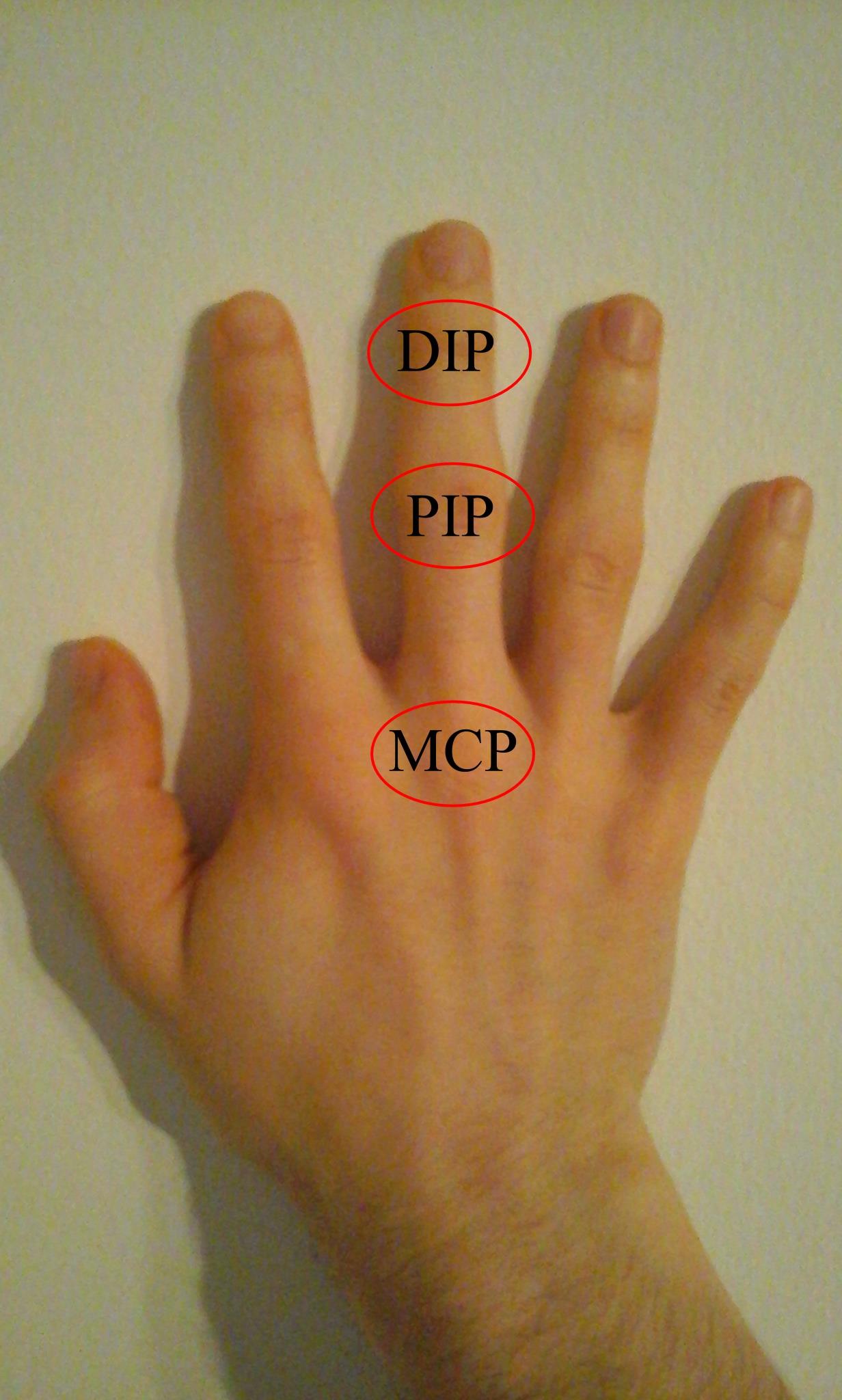 az ujjak és a vállak ízületeinek ízületi gyulladása glükozamin-kondroitin san