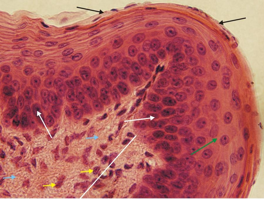 laza kötőszövet regenerálása