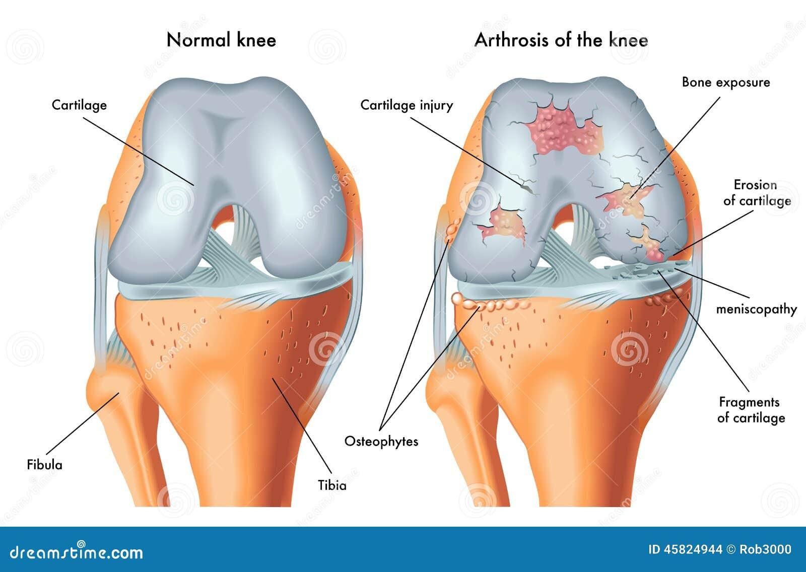 hogyan lehet helyreállítani az ujjak ízületeinek ízületi gyulladását boka fájdalom járás fájdalom