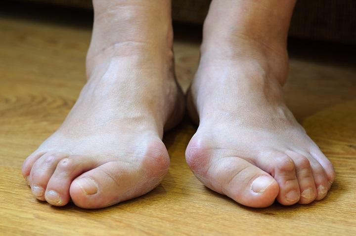 duzzadt ízület a lábon fájdalommal