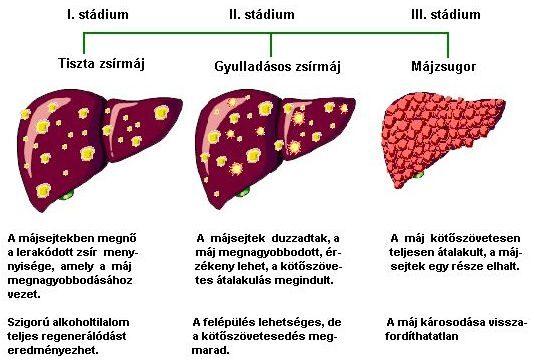 Epehólyag-fájdalmat okozó ételek