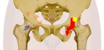 ha a csípőízület fáj könyökfájdalom ellen