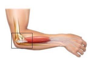 A könyök epicondylitisének okai, típusai, tünetei és kezelése