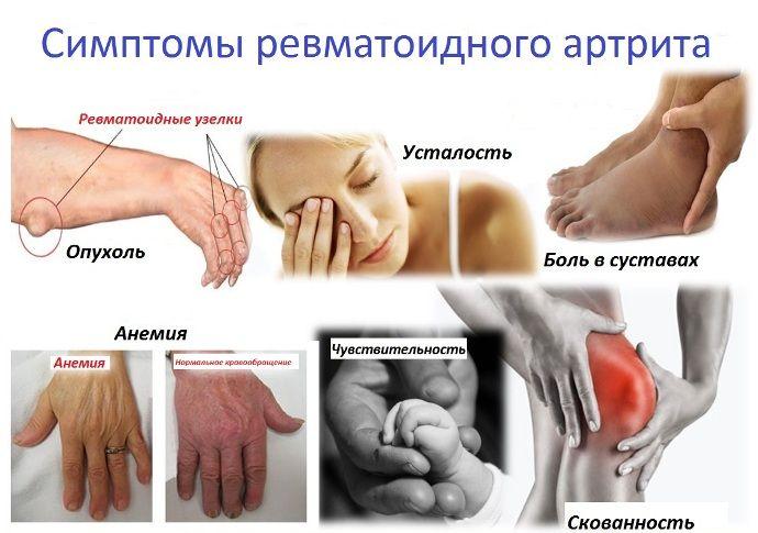 cseh köztársaság ízületi gyulladás és csontritkulás. kezelés