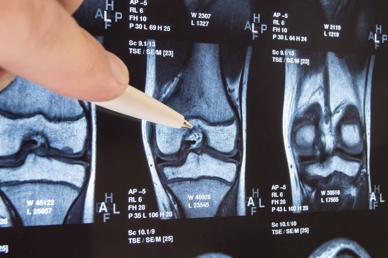 csípőízület osteoarthritis kezelése 3 fokkal hypothyreosis ízületi fájdalom