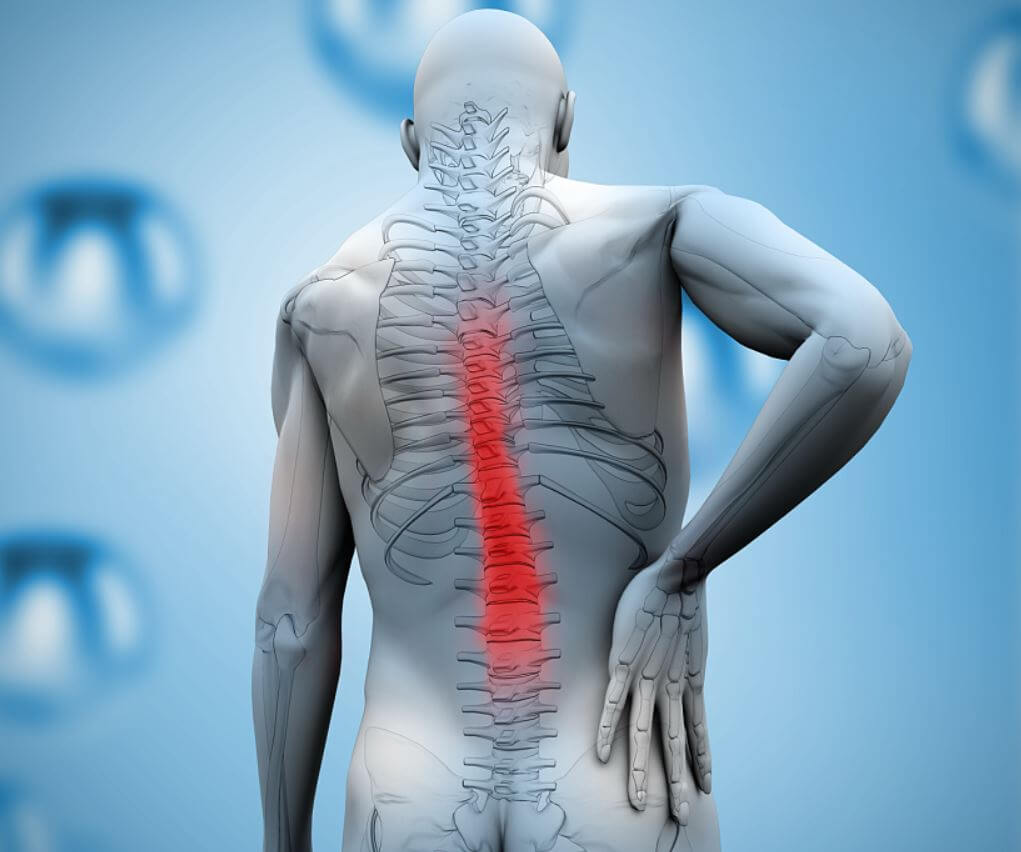 csípő-tünetek spondylarthrosis és kezelés