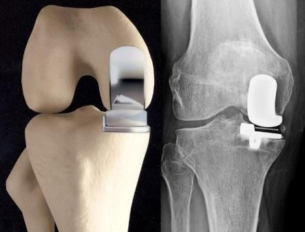 fáj a csípőízület bal oldalán