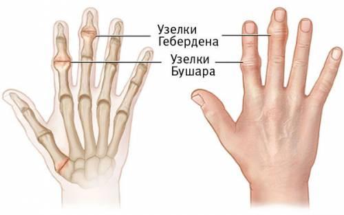 a csípőízület 3. fokának artrózisa a kezelés költsége