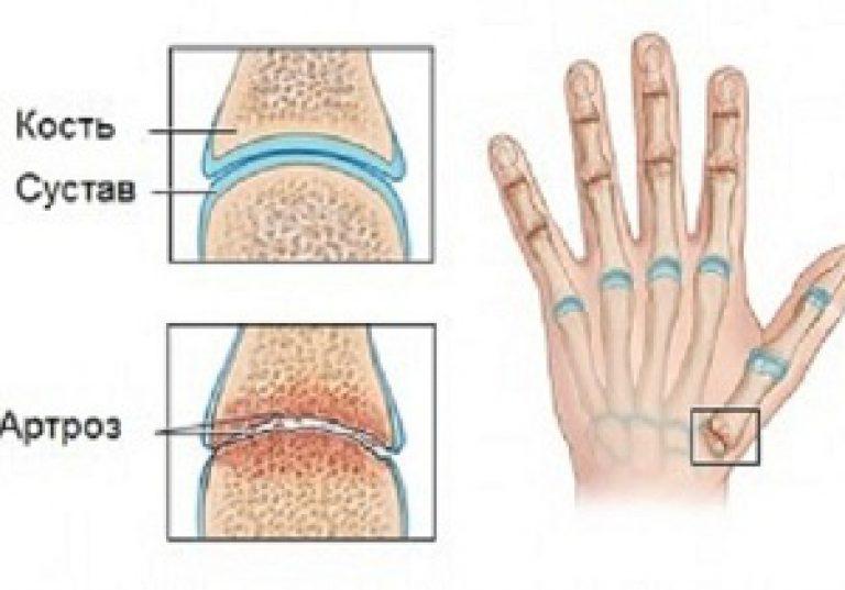 az 1. fokozatú kéz arthrosisának kezelése