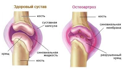 A lábak fájdalmának okai - Kyphosis -
