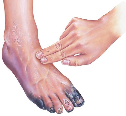 a lábfej lábfej kezelése