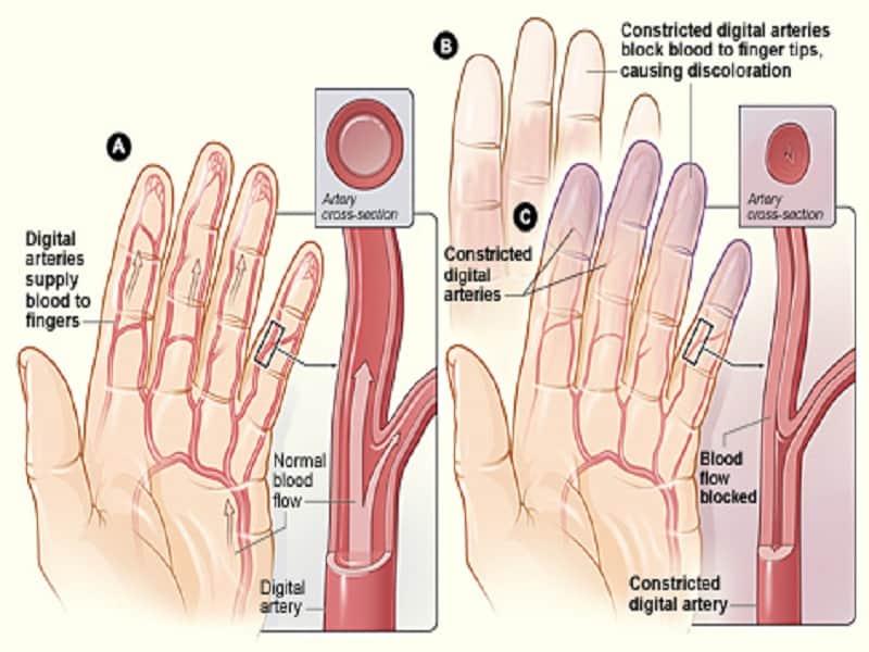 csípőfájdalom vagy gyulladás