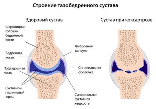 a csípőízület coxarthrosisának kezelése 3 fokos