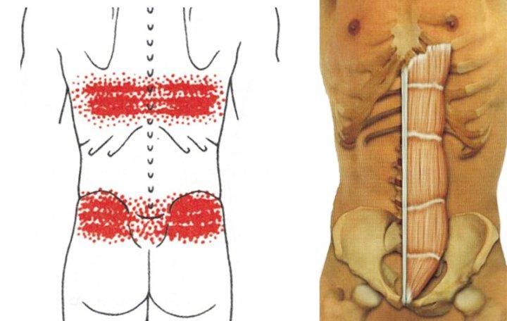 Nyak- és karfájdalom - Nyáktömlőgyulladás -