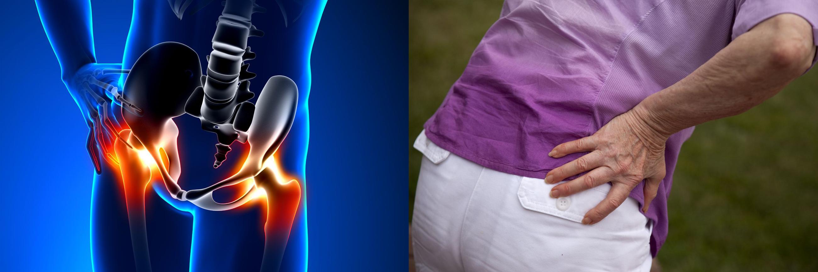 ha a csípőízület fáj izületi fájdalom zselatin