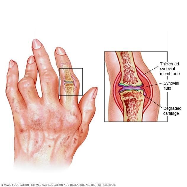 arthroso arthritis 1 lábujj