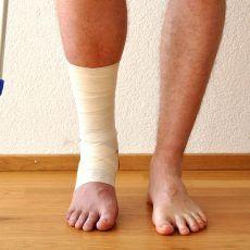 ízületi betegség kenőcs torna a láb ízületeiben
