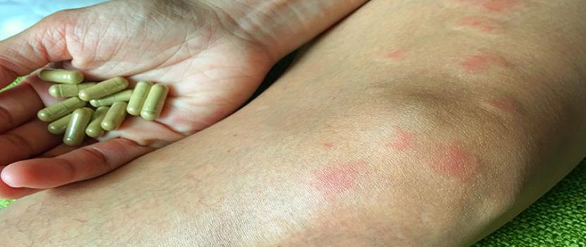 Autoimmun betegségek: kisszótár