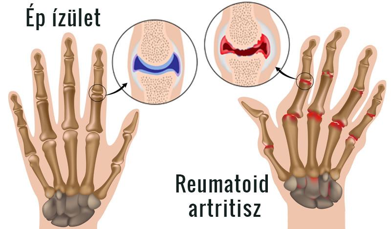 rheumatoid arthritis kéz tünetei csípő-ínkezelés