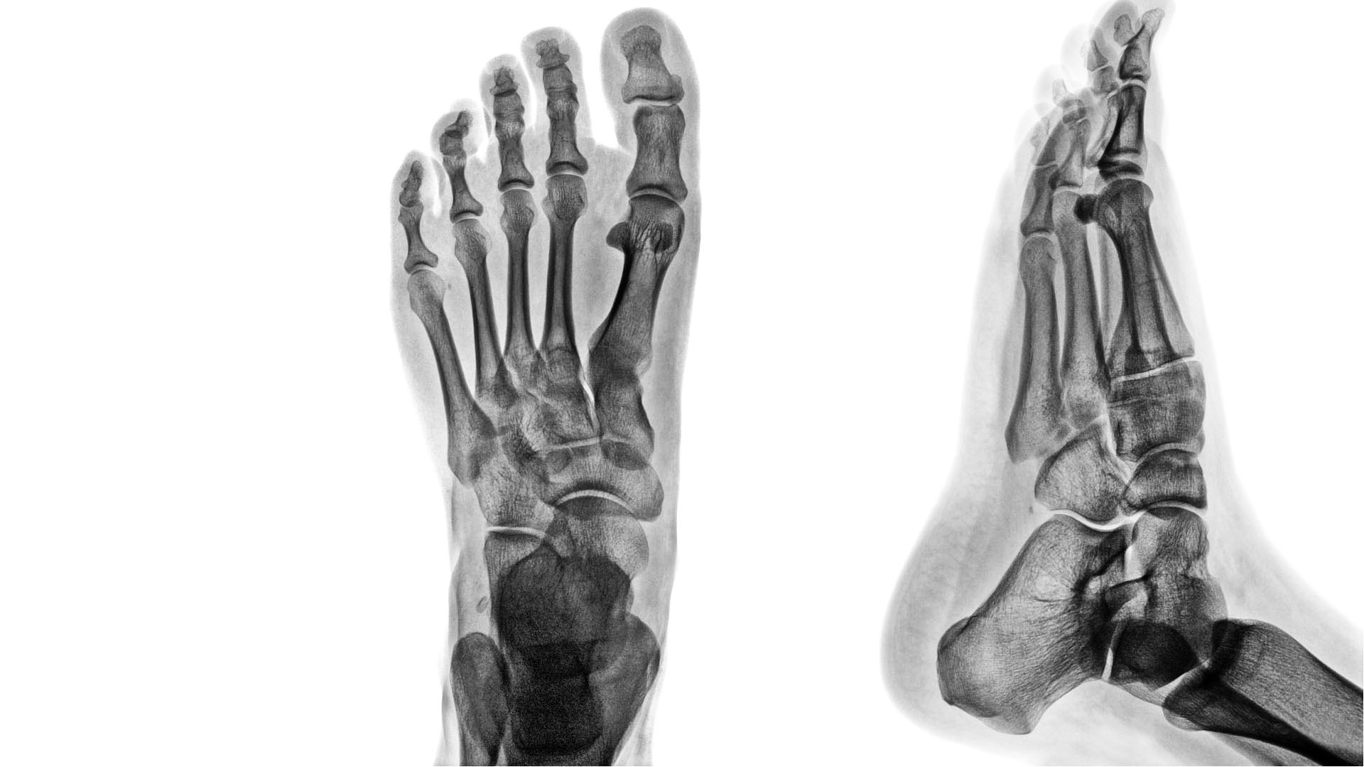Osteoarthritis: tünetei és kezelése komplex betegségek