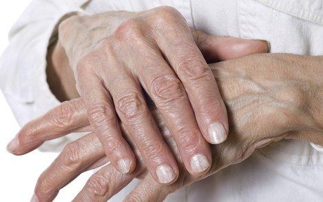 mi segít az ízületi fájdalom fórumától