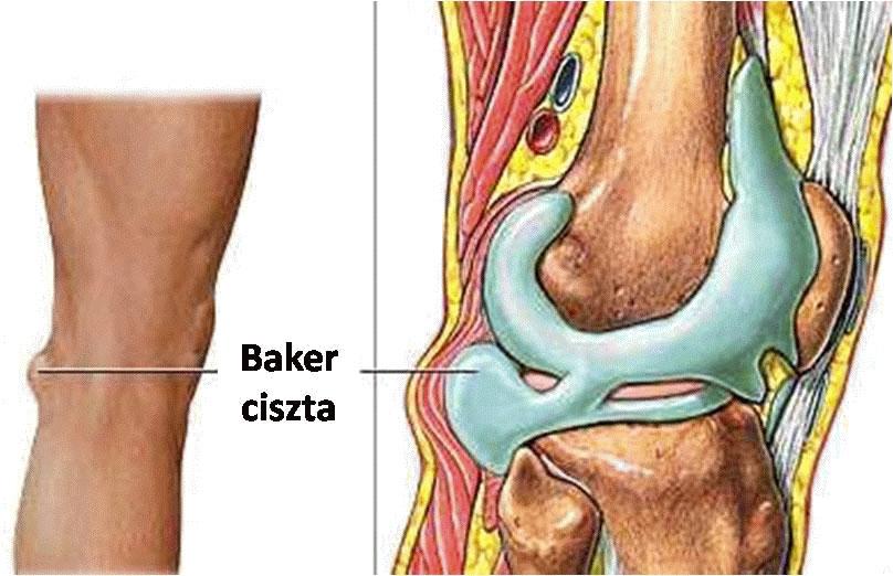 térdízület osteoarthritis kezelése mi a helyzet az ízületek artrózisával