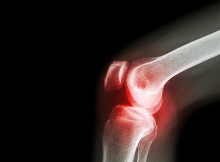 dimexid ízületi betegségek esetén a könyökízület sokáig fáj