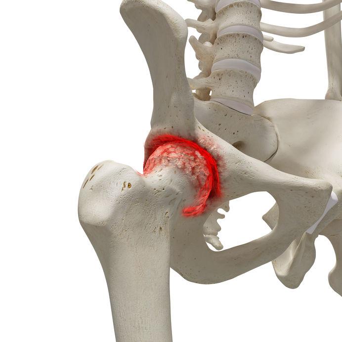 artrózis kezelése metotrexáttal ami azt jelenti, hogy a térdízület artrózisa 2 fok