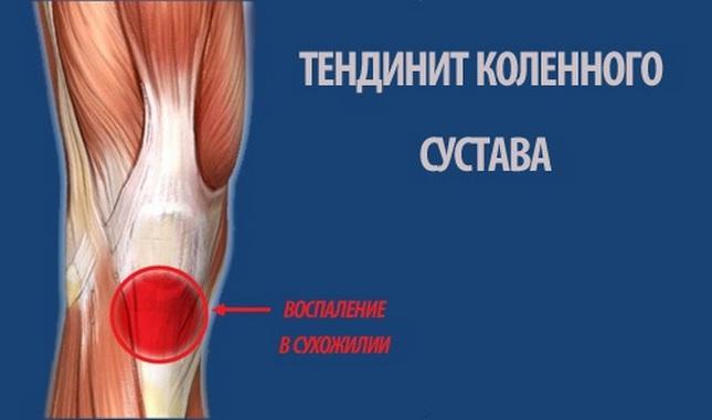 a térd lábának ízületi kezelése