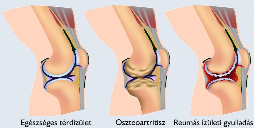 nyaki osteochondrozis kenőcs gélkezelés bursitis és térd artritisz