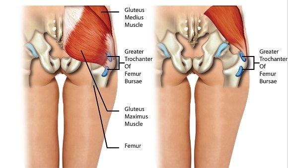 fájdalom az alkar ízületeiben mi miatt fáj a csípőízületek
