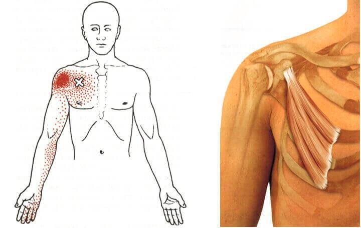 ízületek fáj a sztavropol kezelést csípőbetegség tünetek kezelése