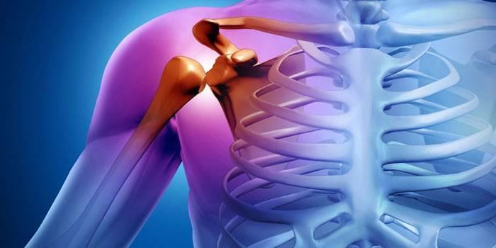 gyengeség csont- és ízületi fájdalmakban