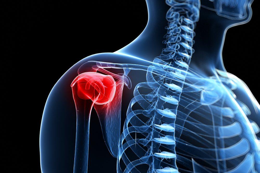 ízületek váll fájdalma a csípőízület bursitisének kezelésére szolgáló készítmények