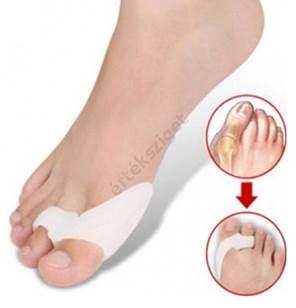 A lábfej deformációja. lúdtalp