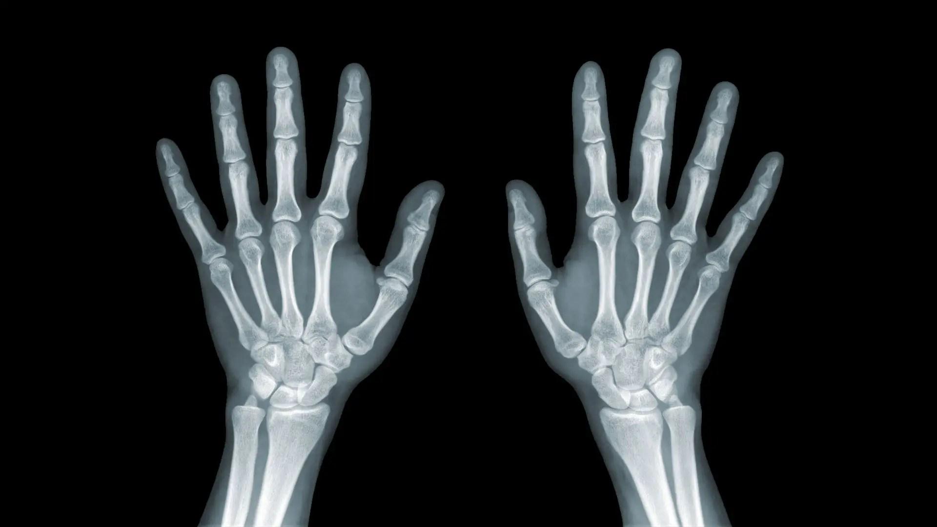 78 Best Sebészet images in   Sebészet, Gyermekgyógyászat, Livingstone
